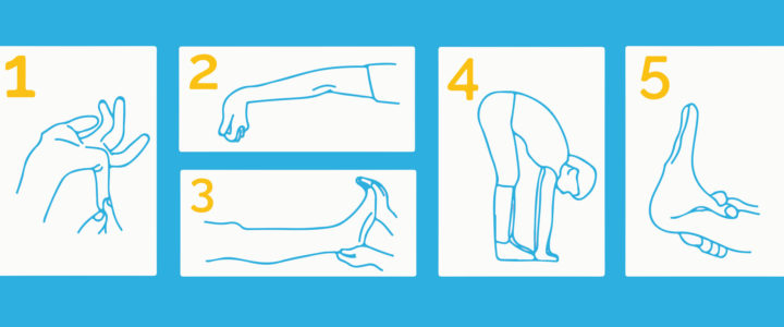 Do You Have Joint Hypermobility Syndrome? Start with the Beighton Score